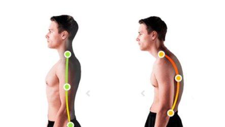 Комплекс упражнений для коррекции осанки
